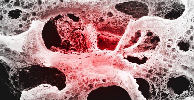 magnetoterapia – osteoporosi