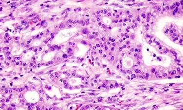 """Tumore al pancreas: trovata la chiave per aprire la """"porta"""" ai linfociti che eliminano i tessuti malati"""